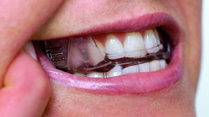 Why an Oral Appliance is Cheaper Than A Divorce
