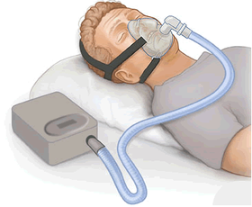 15 Issues with CPAP Machines for Sleep Apnea